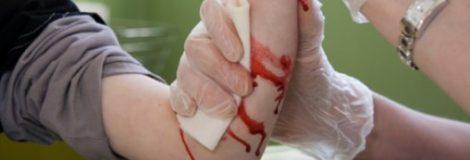 Krvácanie